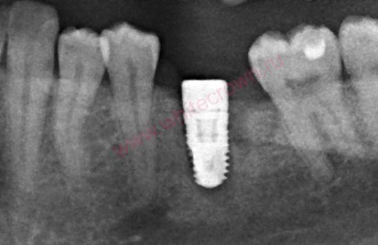рентген импланта