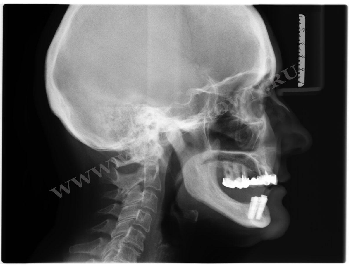 снимок ТРГ зубов