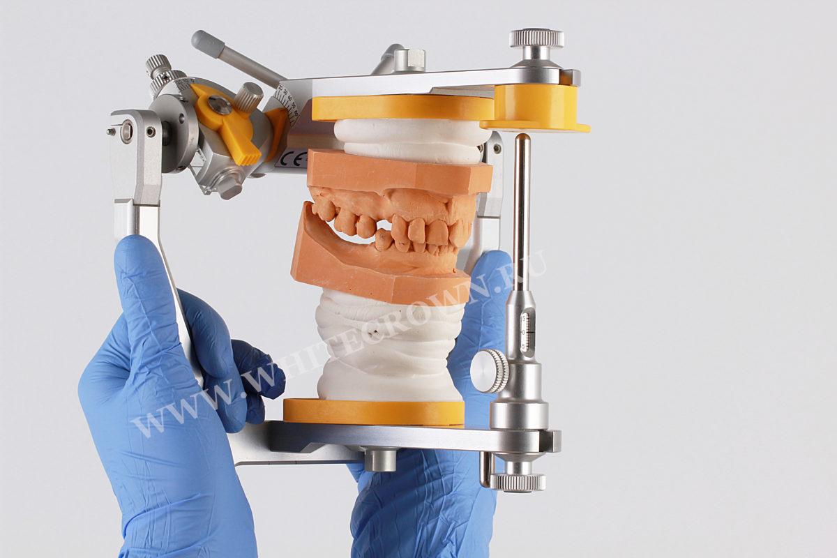 Диагностическая модель челюсти