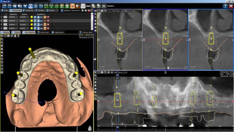хирургический шаблон