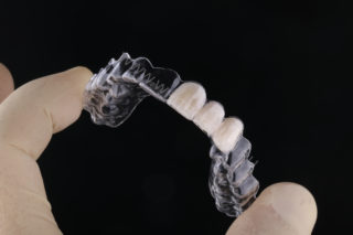 essix retainer with teeth