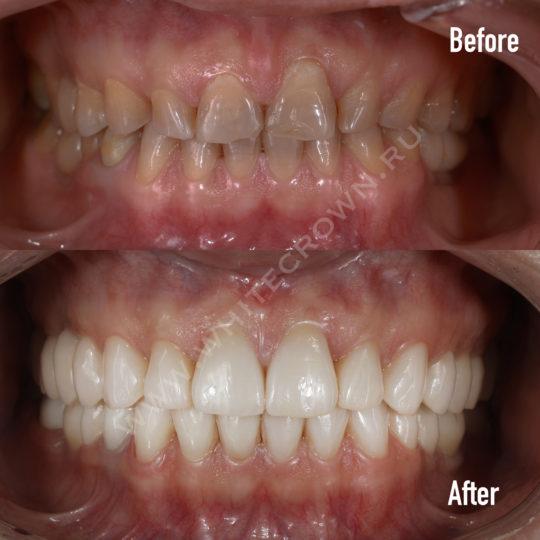 отбеливание зубов виниры