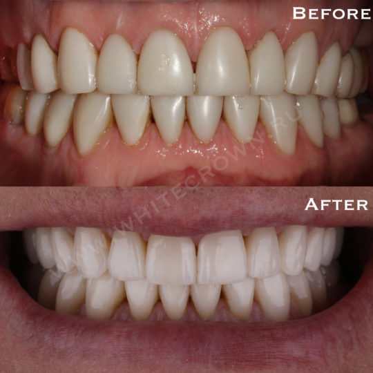 реставрация зуба