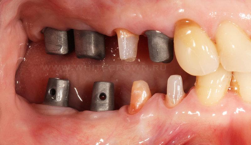 протезирование боковых зубов