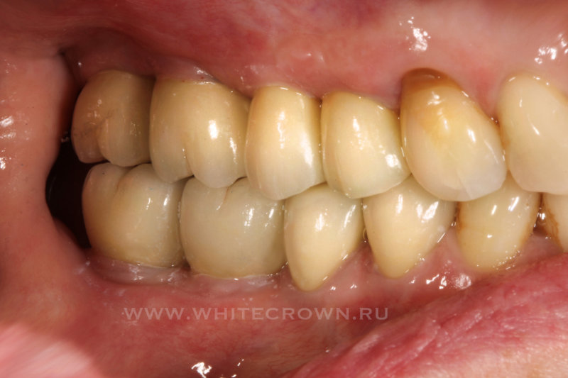 коронки на жевательных зубах