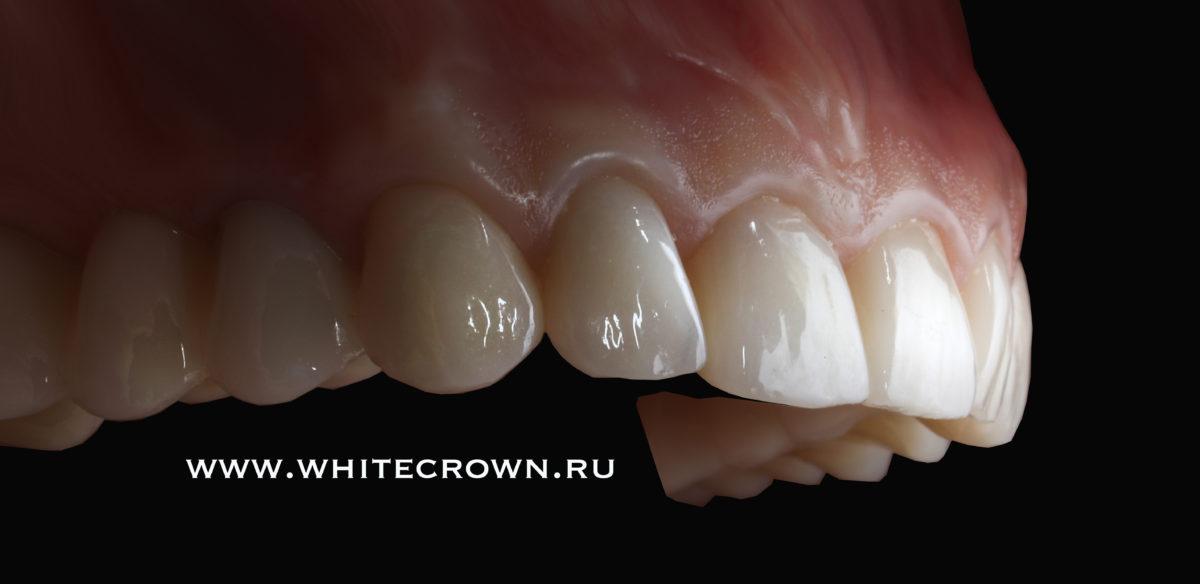 Какой имплантат поставить на жевательный зуб?