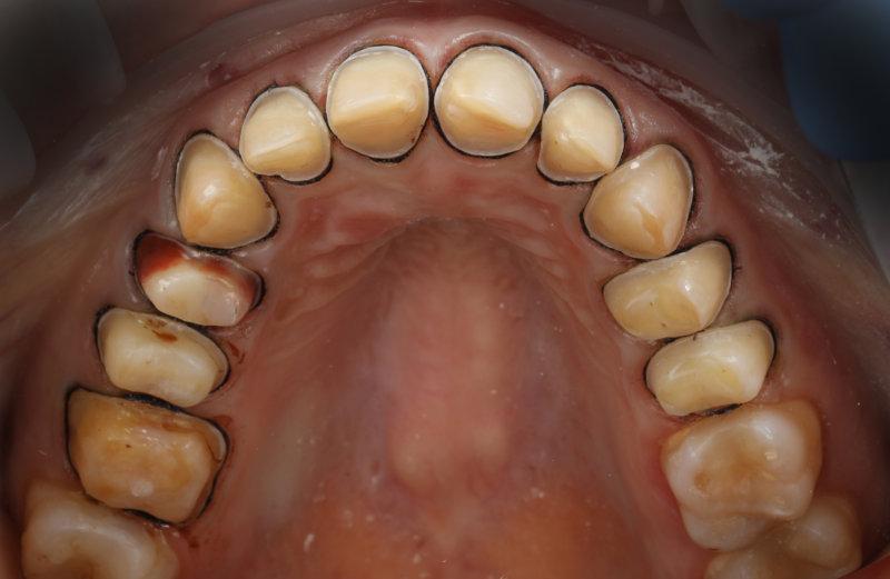 керамические виниры, обточка зубов под коронки