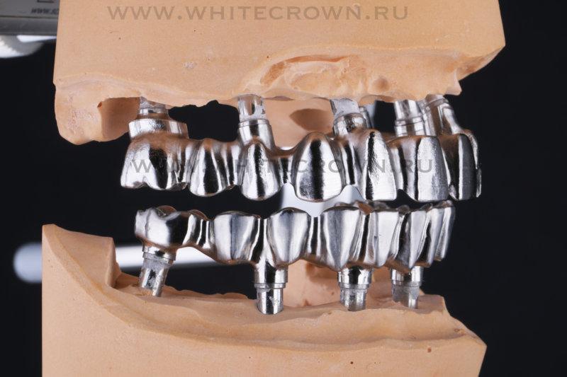 Немецкие импланты Ankylos, каркас металлокерамики
