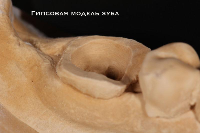 гипсовая модель зуба