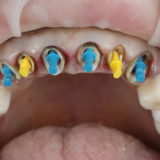 культевые вкладки на передние зубы