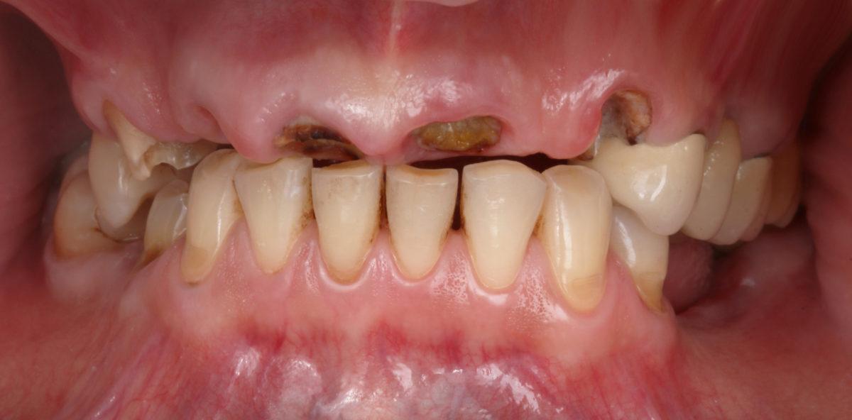 Разрушеные зубы