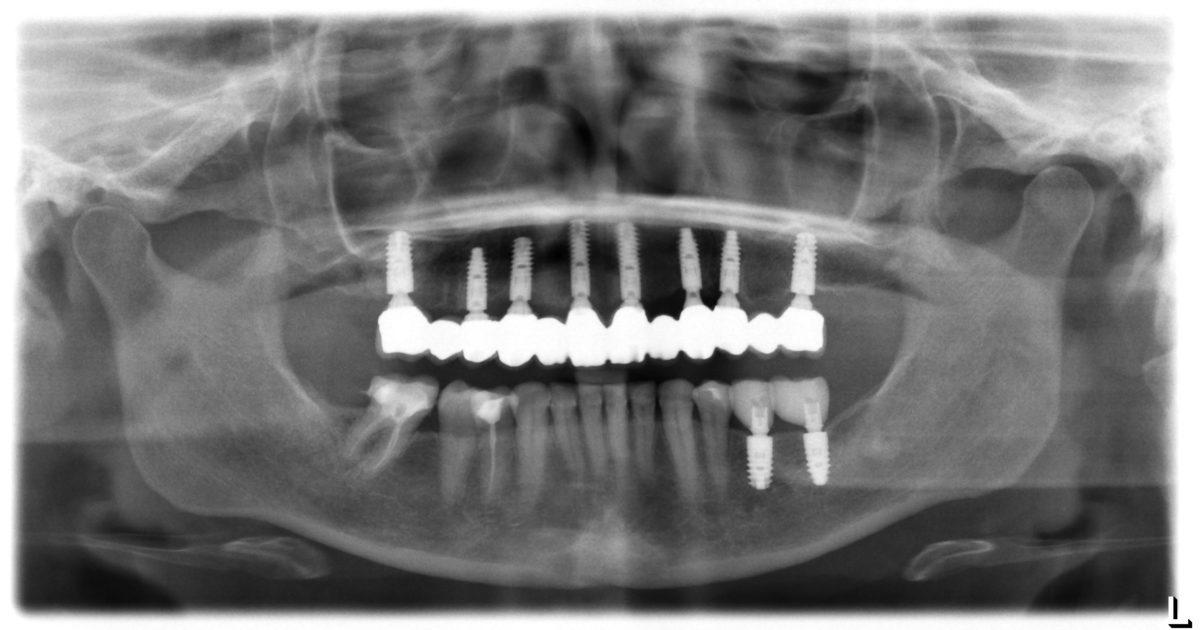 рентген имплантов