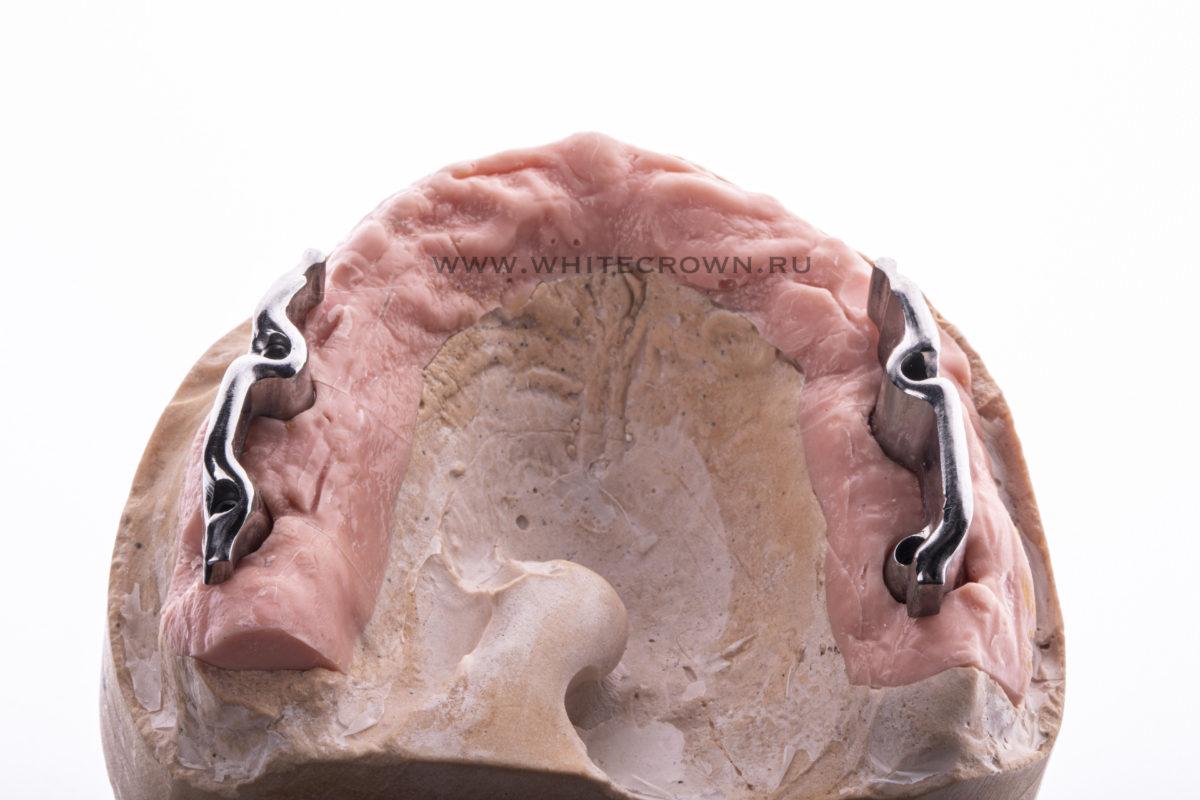 балочный протез