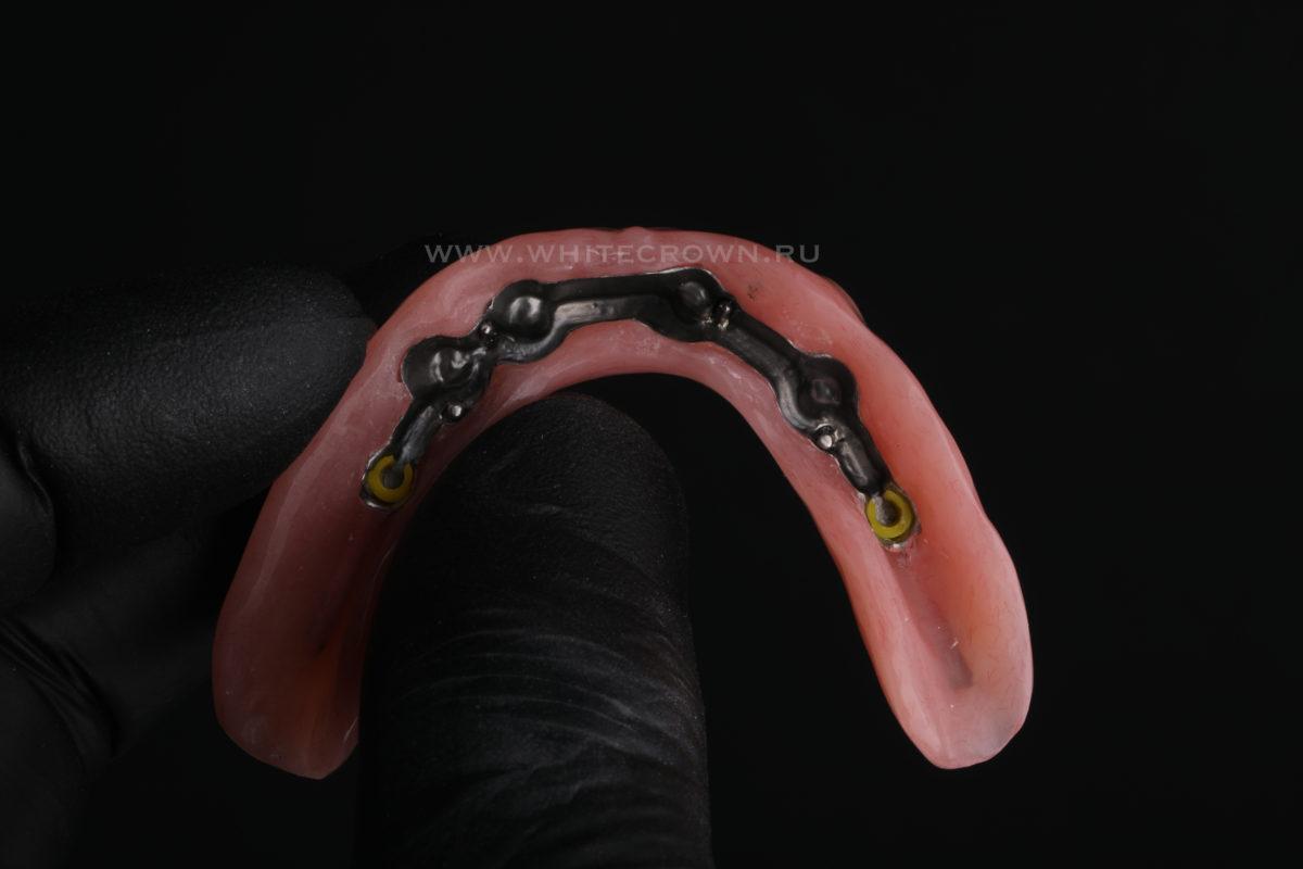 балочный протез на нижнюю челюсть