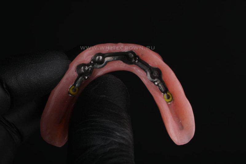 балочный протез на нижнюю челюсть,балочный протез, all-on-4, всё на четырёх