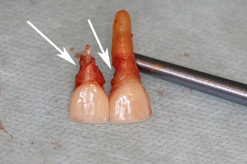 как установить имплантат на передний зуб и не ходить без зуба?