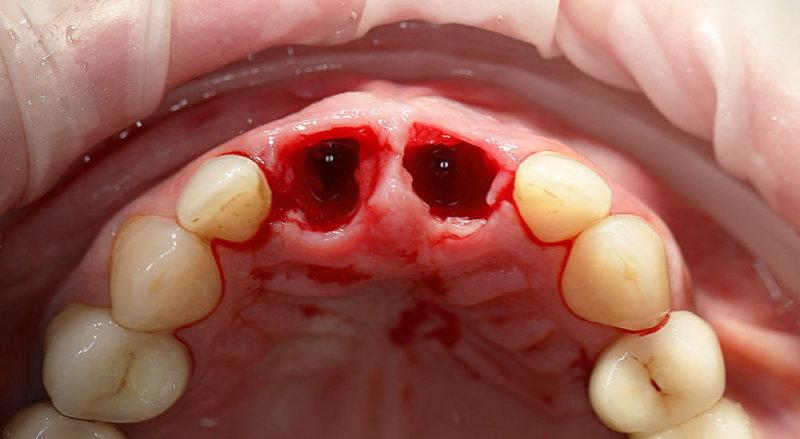 место удаленных зубов, сюда будут устанавливаться имплантаты