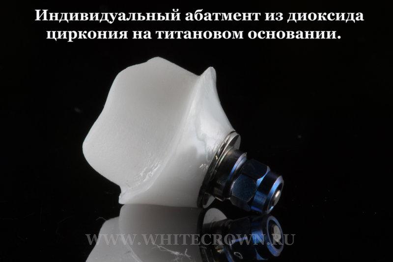 диоксид циркония, индивидуальный абатмент