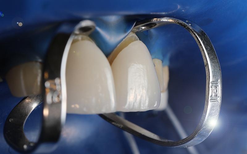 сколько стоят виниры для зубов